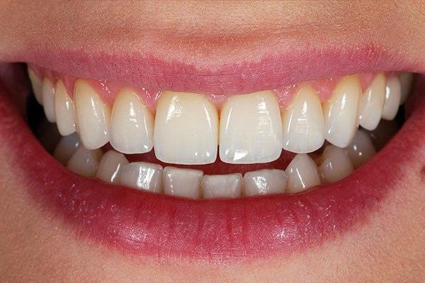 Как сделать зубы более красивыми